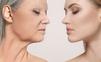 Ako bojovať proti príznakom starnutia pokožky?