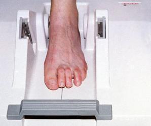 Osteoporózou trpí na Slovensku asi 230.000 ľudí, nemá výrazné príznaky