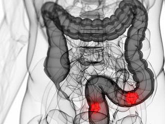 Rakovina hrubého čreva: Nečakajte na prvé príznaky
