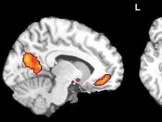 Vedci našli spôsob, ako zastaviť Alzheimerovu chorobu v ranom štádiu