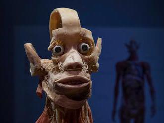 FOTO Kontroverzná výstava: Medzi mŕtvymi telami boli krásky z móla aj škandalózny doktor Fischer!