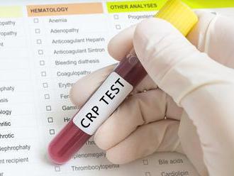 Poznáte hodnoty CRP testu?