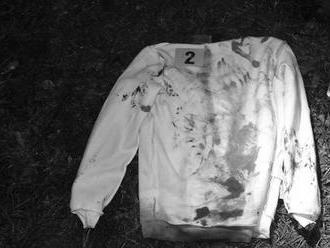 Brutálny útok v okrese Poltár: Mladíka   museli ihneď operovať, podozrivý je v rukách polície