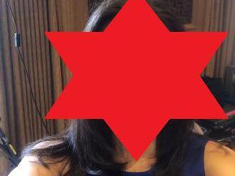 Žena   išla na plastiku, aby vyzerala ako Meghan Markle: FOTO výsledku... veď posúďte sami