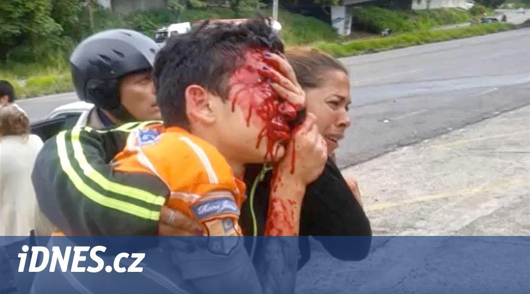 Teenager přišel při protestu o oči, jeho obličej zasáhlo 52 gumových střel