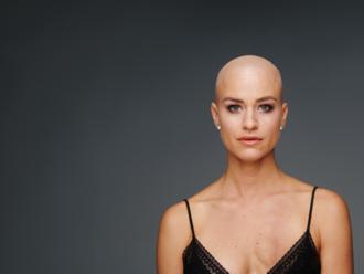Bojujem s rakovinou prsníka: Možno vyzerám, že mi nič nie je, ale prídem domov, odložím si prsník a
