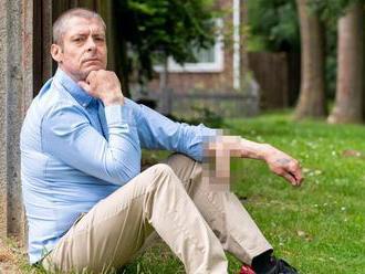 Pre chorobu prišiel o penis. Náhradný mu