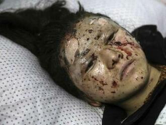 Počet obetí bombového útoku pri škole v afganskom Kábule vzrástol na 85