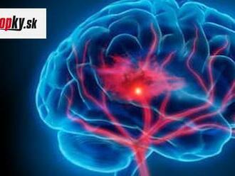 5 návykov, ktoré poškodzujú vašu pamäť a mozog: Prestaňte s nimi predtým, ako bude neskoro